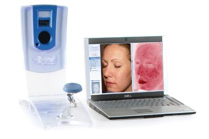 3D-Hautdiagnose